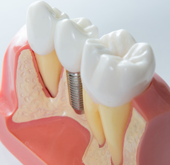 dental implant cross section view