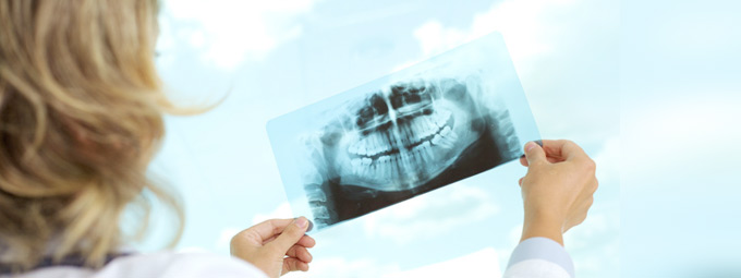 picture of dental x-rays