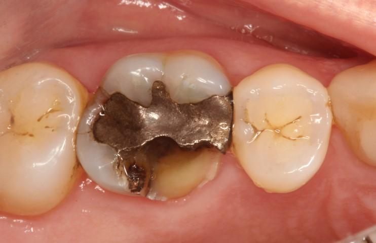 Broken Tooth Cracked Cusp North Austin Dentistry Logan