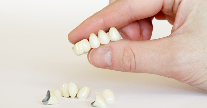 partial denture vs dental bridge